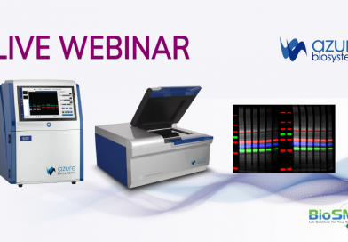 Bands to Data What we do to get Quantitative Western Blot